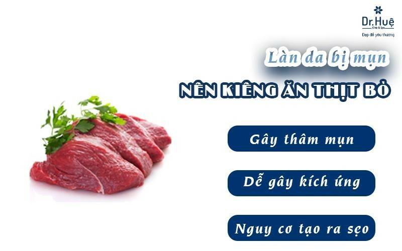 Kiêng thịt bò khi bị mụn