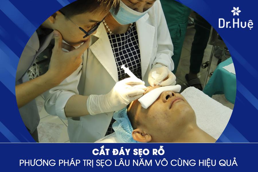 Phương pháp cắt đáy sẹo rỗ mang đến hiệu quả vượt trội