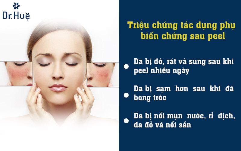 Những triệu chứng da bị tác dụng phụ biến chứng sau peel