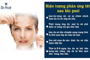 Chăm sóc da sau peel: Cần làm gì, nên dùng sản phẩm gì?