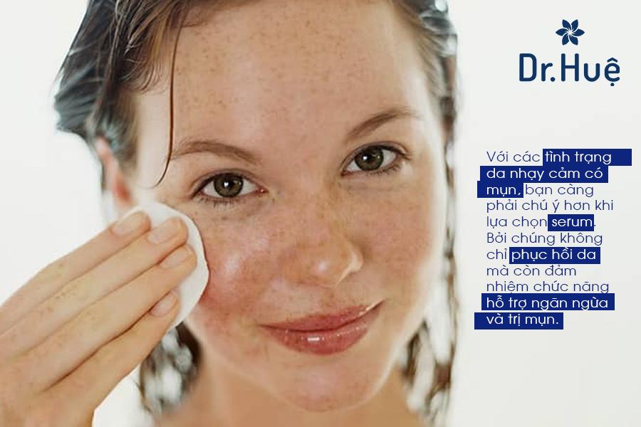 Serum trị mụn cho da nhạy cảm nào nên chọn?