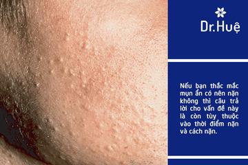 [Giải Đáp] Có nên đi nặn mụn ẩn lấy nhân mụn ẩn dưới da không
