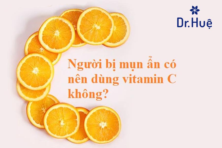 Mụn ẩn có nên dùng vitamin C không?