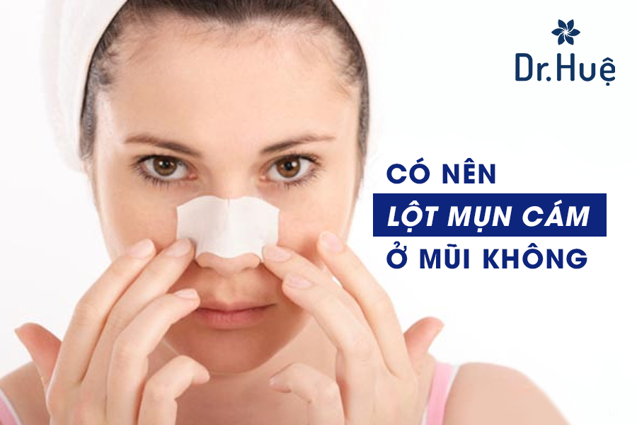 Có nên lột mụn cám ở mũi không?