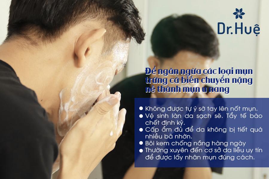 Cách ngăn ngừa mụn u nang