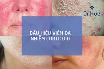 Phác đồ điều trị da bị nhiễm Corticoid chuẩn y khoa tại Phòng Khám Dr. Huệ Clinic & Spa