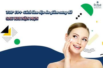 TOP 10+ Cách làm dịu da giảm sưng đỏ sau khi nặn mụn