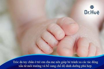 Tróc da tay chân ở trẻ em cha mẹ nên làm gì