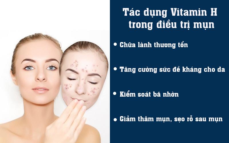 Tác dụng Vitamin H trong điều trị mụn