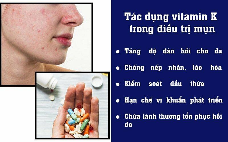 Tác dụng vitamin K trong điều trị mụn