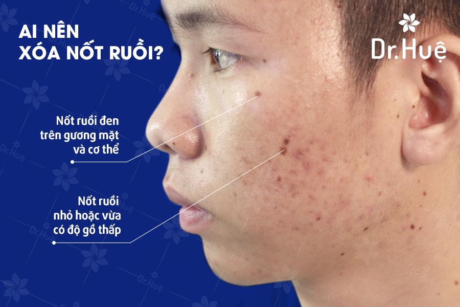 Những trường hợp nên trải nghiệm liệu trình xóa nốt ruồi tại Dr. Huệ